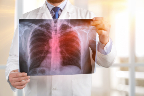 All about Legionnaire's disease, its symptoms and treatments